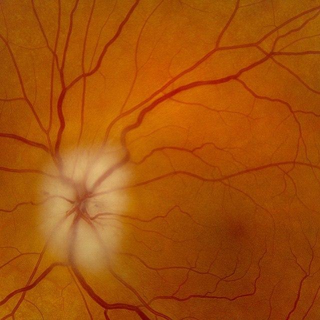 Отек ДЗН при передней ишемической нейропатии
