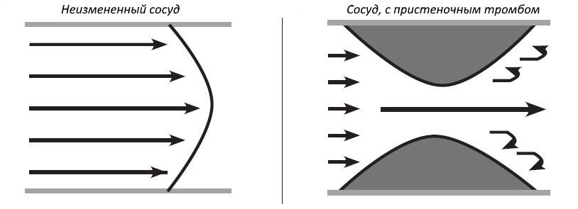 Характер потока крови в различных условиях сосудистого русла