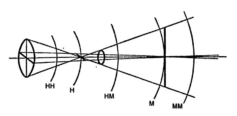 Заболевание и повреждение глаз близорукость дальнозоркость