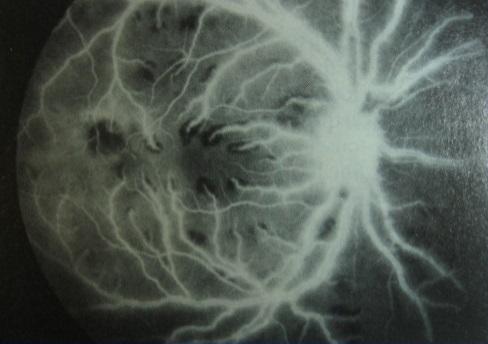ангиография: выявлено просачивание флюоресцеина из ретинальных сосудов безсосудистой окклюзии