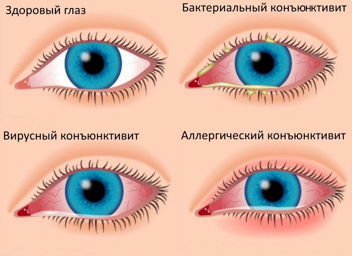 """Синдром """"красного глаза"""" / Синдромы в офтальмологии / Глазные ..."""