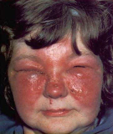 рожистое воспаление на лице фото