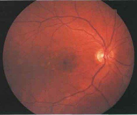 Лекции в г жданов естественный метод восстановления зрения