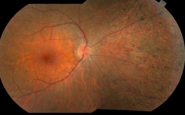 Сетчатка человека с пигментным ретинитом